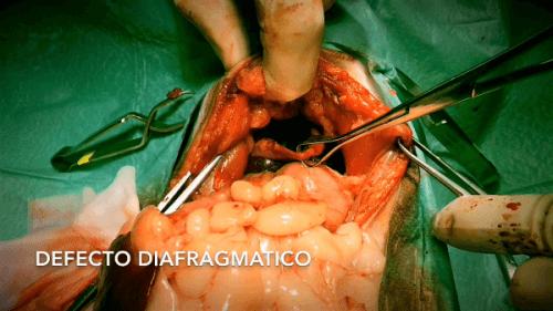 Gato cirugía Defecto diafragmático